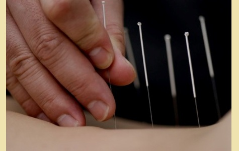 Cosmetic Acupuncture treatment in Kolkata | Practitioners of